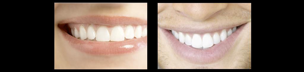 Dental Crowns. PORCELAIN & ZIRCONIUM CROWNS